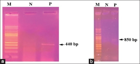 Agarose gel electrophoresis of polymerase chain reaction products obtained from Hyalomma dromedarii and Hyalomma excavatum using two genes: (a) 16S ribosomal RNA gene reveals 440 bp, (b) cytochrome oxidase subunit-1 gene, reveals 850 bp, (M) 1 kb DNA ladder, (N) negative control.