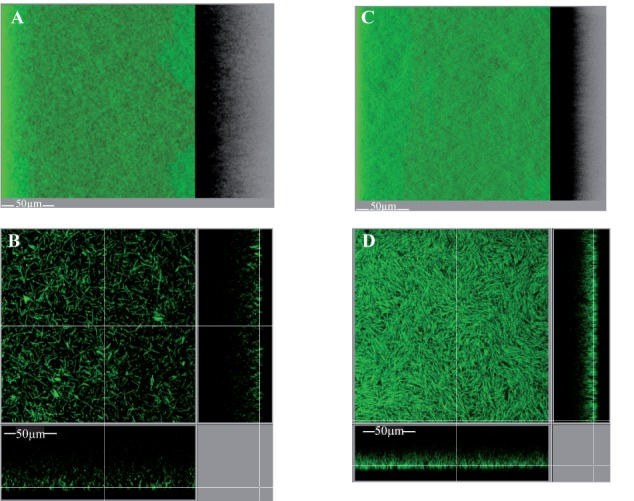 Intact biofilm architecture of the parental strain over-expressing or not dccA . Biofilms were grown in TYt medium freshly added onto adhesive starter cells in 96-well polystyrene micro-titer plates. The procedure was essentially as described in Figure 8 , except that growth was for only 24 h and that anhydro-tetracycline was added to induce P tet promoter and dccA expression. At the end of growth, intact biofilms were stained and observed by CLMS as described in Figure 8 . Representative images are shown. For each strain, a 3D projection upside view, with its shadow on the right (A,C) , and a section view close to the surface (B,D) are shown, with the white bar indicating the scale (50 μm). The biofilm of the parental strain over-expressing dccA (630Δ erm p dccA in C,D ) and that of the control strain (630Δ erm p in A,B ) are shown. After data recovery, the same four parameters as in Figure 8 were quantified and a statistical analysis was performed (see Supplementary Figure S9 ).