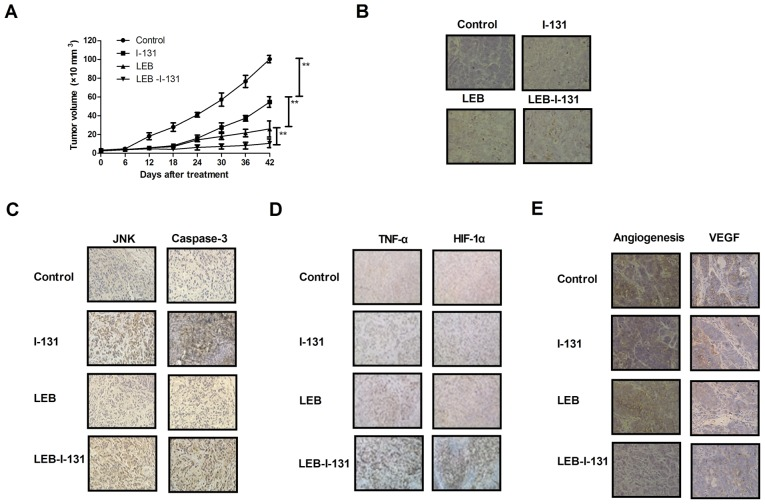 In vivo effects of combined treatment of LEB and I-131 in an NPC xenograft mice model. (A) Effects of combined treatment of LEB and I-131 on tumor growth in NPC xenograft mice model. (B) Apoptotic bodies in tumors following treatment with LEB or/and I-131 determined by terminal deoxynucleotidyl-transferase-mediated dUTP nick end labeling assay (magnification, ×20). (C) JNK and Caspase-3 expression levels in tumors following treatment with LEB or/and I-131 determined by immunohistochemistry (magnification, ×20). (D) Expression levels of TNF-α and HIF-1α in tumors following treatment with LEB or/and I-131 determined by immunohistochemistry (magnification, ×20). (E) Angiogenesis and VEGF expression in tumors following treatment with LEB or/and I-131 determined by hematoxylin and eosin staining (magnification, ×20). **P