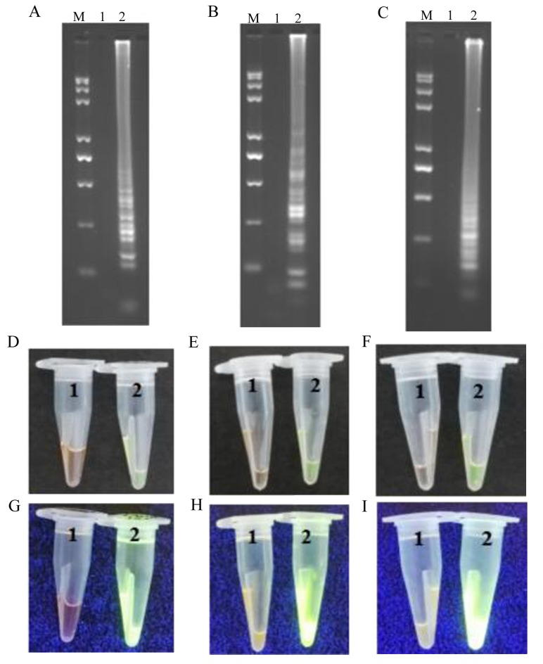 Representative isothermal reaction assays of negative controls and positive samples subjected to LAMP, CPA and IMSA methods to detect the AML1 / ETO fusion gene. Reaction contents of the tubes for (A) LAMP, (B) CPA and (C) IMSA assays were subjected to agarose gel electrophoresis and UV visualization of the products. Images of reaction tubes for (D) LAMP, (E) CPA and (F) IMSA under visible light. Images of reaction tubes for (G) LAMP, (H) CPA and (I) IMSA under UV light. Images were captured following the addition of SYBR-Green I. LAMP, loop-mediated isothermal amplification; CPA, cross-priming amplification; IMSA, isothermal multiple-self-matching-initiated amplification; M, Trans 2K plus II DNA marker; 1, negative control; 2, positive detection of AML1 / ETO fusion gene. AML1 , runt related transcription factor 1; ETO , runt related transcription factor 1 translocation partner 1.
