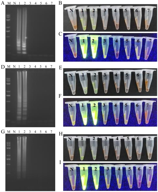Specificity test for the LAMP, CPA and IMSA assays. LAMP assay: (A) Agarose gel electrophoresis of products obtained; (B) visualization of reactions performed with various samples ( 1 – 7 ) and SYBR-Green I under visible light; (C) visualization of reactions performed with various samples ( 1 – 7 ) and SYBR-Green I under UV light. CPA assay: (D) agarose gel electrophoresis of products obtained; (E) visualization of reactions performed with various samples ( 1 – 7 ) and SYBR-Green I under visible light; (F) visualization of reactions performed with various samples ( 1 – 7 ) and SYBR-Green I under UV light. IMSA assay: (G) agarose gel electrophoresis of products obtained; (H) visualization of reactions performed with various samples ( 1 – 7 ) and SYBR-Green I under visible light; (I) visualization of reactions performed with various samples ( 1 – 7 ) and SYBR-Green I under UV light. M, Trans 2K plus II DNA marker; N, negative control; LAMP, loop-mediated isothermal amplification; CPA, cross-priming amplification; IMSA, isothermal multiple-self-matching-initiated amplification; AML1 / ETO , runt related transcription factor 1/runt related transcription factor 1 translocation partner 1; 1, AML1/ETO plasmid; 2, AML1/ETO fusion gene sample; 3, chronic myelogenous leukemia (breakpoint cluster region/abelson) sample; 4, acute promyelocytic leukemia (promyelocytic leukemia/retinoic acid receptor-α) sample; 5, 11q23/mixed lineage leukemia leukemia sample; 6, acute lymphocytic leukemia/PBX homebox 1 sample; 7, healthy sample as the template.