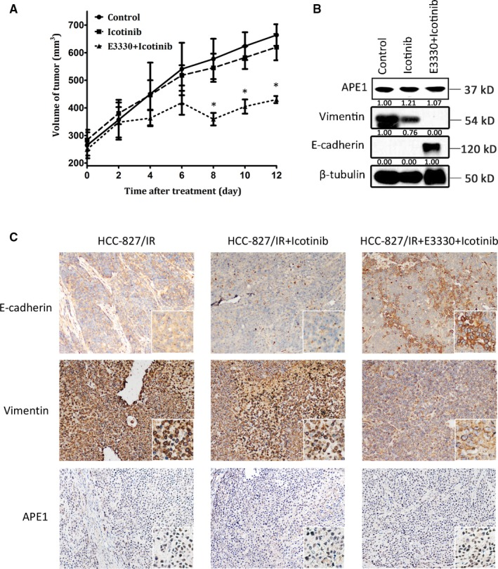 APE 1 promotes the metastatic potential of xenograft lung cancer cells in nude mice. One million HCC 827/ IR cells were inoculated subcutaneously into nude mice which were then treated with icotinib at 0 mg/kg, 70 mg/kg alone, and 70 mg/kg together with E3330 at 25 mg/kg (n = 6 mice or 12 xenografts/group). Xenograft growth was measured in two dimensions, and volume was recorded (tumor size (mm 3 ) = (maximum diameter ×minimum diameter 2 )/2) (A). After daily treatment for 12 d, the nude mice were sacrificed, and histologically intact xenografts were collected. The expression of APE 1, <t>E‐cadherin,</t> and vimentin in the xenograft extracts was detected by Western blot (B). EMT analyses of tissue slides were performed via IHC staining of E‐cadherin and vimentin (C). The mean values of the 12 xenografts of each group are shown as the mean ± SD , * Statistically significant difference when compared with the control group ( P
