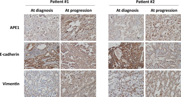 APE 1 is elevated in T790M‐negative EGFR ‐ TKI ‐resistant patients. APE 1 and the EMT biomarkers E‐cadherin and vimentin were assayed by IHC in the tumors of two patients receiving rebiopsy after progression following treatment with first‐generation EGFR ‐ TKI , and these markers were compared with pretreatment biopsy tissue. Both patients underwent rebiopsy at disease progression with core needle, and the tumor was determined to be T790M negative by the Cobas method