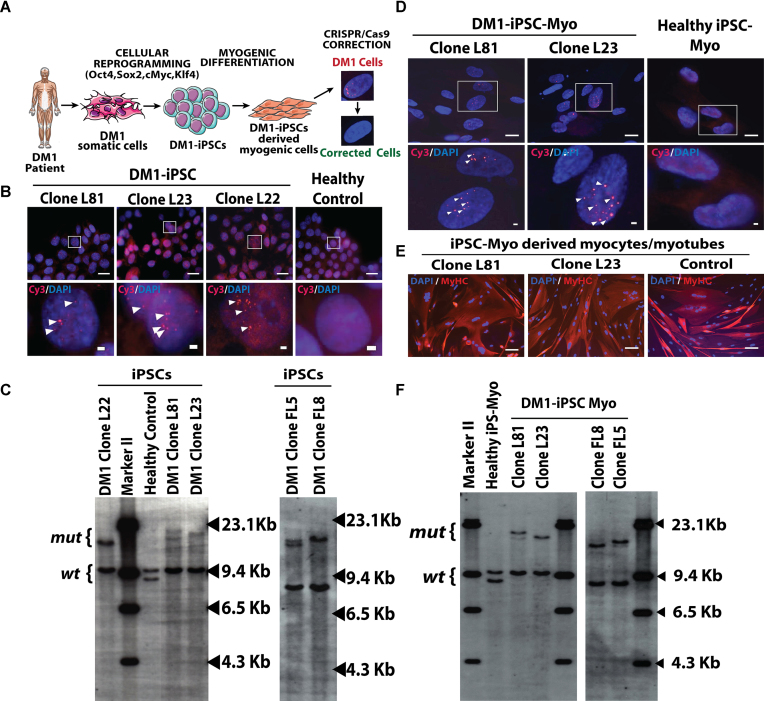 Generation of DM1-iPS cells (DM1-iPSCs) and DM1-iPSC derived inducible myogenic cells (DM1-iPSC-Myo). ( A ) Schematic overview showing CRISPR/Cas9 based correction of DM1 patient iPSCs derived myogenic cells (DM1-iPSC-Myo). ( B ) Representative image of DM1-iPSC clones and healthy control iPSCs stained for RNA foci by fluorescent in situ hybridization (FISH). An antisense Cy3-labeled probe was used against trinucleotide CUG expanded repeat. Arrowheads indicated ribonuclear foci. Upper panel represents stained nuclei at lower magnification (scale bar = 20μm) and lower panel represents higher magnification of selected region (scale bar = 2μm). Nuclei were counter-stained with DAPI. ( C ) Southern blot analysis to detect the length of trinucleotide CTG repeats in five DM1-iPSC clones from two DM1 patients (L22, L81 and L23; FL8 and FL5) and healthy control iPSCs. EcoR I digested genomic DNA was subjected to agarose gel electrophoresis and probed to detect the DMPK locus. (mut = mutant; wt = wild type) . ( D ) Representative image of FISH staining on DM1-iPSC-Myo for detection of ribonuclear foci. Arrowheads indicate multiple RNA foci in nuclei of DM1-iPSC-Myo. Healthy iPSC-Myo were used as a negative control. Upper panel represents stained nuclei at lower magnification (scale bar = 20 μm) and lower panel represents higher magnification of selected region (scale bar = 2 μm). Nuclei were counter-stained with DAPI. ( E ) Myogenic conversion of DM1-iPSC-Myo (L81 and L23) and healthy iPSC-Myo post MyoD induction were stained for a mature muscle marker, myosin heavy chain (MyHC) (scale bar = 100 μm). Nuclei were counter-stained with DAPI. ( F ) Southern blot analysis of trinucleotide CTG repeats length in DM1-iPSC-Myo (L81 and L23; FL8 and FL5) and healthy-iPSC-Myo to check the length of triplet repeats post-differentiation (mut = mutant; wt = wild type) .