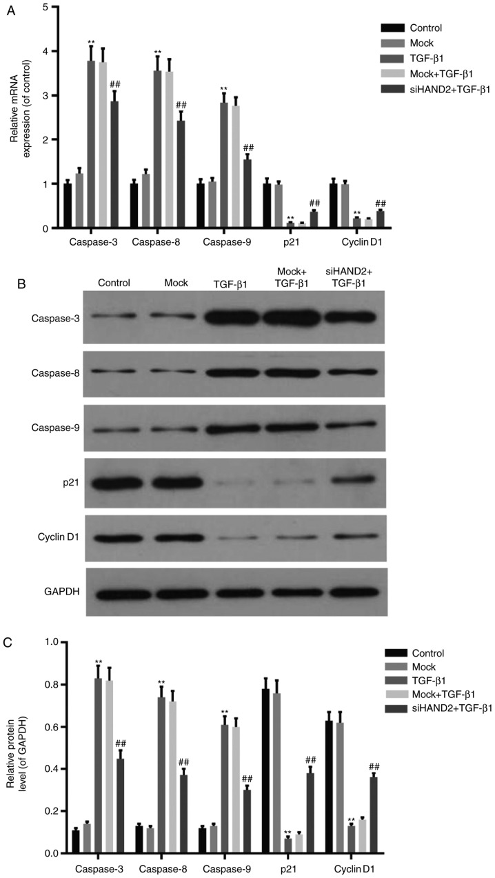 siHAND2 restores the expression levels of cell cycle- and apoptosis-related factors in HBE cells treated with TGF-β1 (A) Reverse transcription-quantitative polymerase chain reaction analysis was performed to detect mRNA expression of cell cycle- and apoptosis-related factors in HBE cells of different groups. The mRNA expression of cell cycle-related factors (Cyclin D1 and P21) decreased, and apoptosis-related factors (caspase-3, caspase-8 and caspase-9) increased significantly in the TGF-β1 group, compared with those in the control group. All expression levels were recovered in the siHAND2 + TGF-β1 group, compared with those in the TGF-β1 group (P