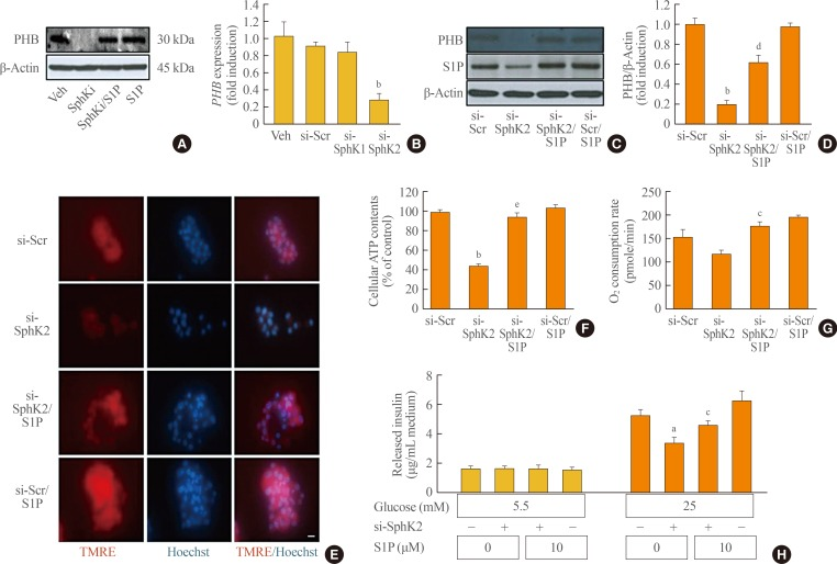 Knockdown of the sphingosine kinase 2 ( SPHK2 ) gene decreases prohibitin (PHB) and induces mitochondrial impairment in β-cells. (A) PHB expression was measured by an immunoblotting assay in mouse insulinoma 6 (MIN6) cells that were incubated with a sphingosine kinase inhibitor (SphKi) and/or sphingosine-1-phosphate (S1P) for 48 hours. (B) MIN6 cells were transfected with silencing genes targeting SPHK1 or SPHK2 . After incubation for 8 hours, the transcription of PHB was determined by real-time reverse-transcription polymerase chain reaction. (C, D) MIN6 cells were transfected with small interfering RNA (siRNA) for SPHK2 for 8 hours, and a portion of the cells were incubated with S1P for 48 hours. Expression of PHB was analyzed by an immunoblotting assay, and quantitative levels were represented by normalization to β-actin expression. (E) After knockdown of SPHK2 and/or S1P treatment, MIN6 cells were exposed to 100 ng/mL tetramethylrhodamine ethyl ester (TMRE) and 10 ng/mL Hoechst. Mitochondrial membrane potentials were probed by TMRE showing red fluorescence, and the nucleus was visualized by blue fluorescence. Bars=20 µm. (F, G) Adenosine triphosphate (ATP) levels and the oxygen consumption rate were analyzed in MIN6 cells after transfection of SPHK2 siRNA and/or S1P treatment. (H) Glucose-stimulated (5.5 or 25 mM) insulin secretion was evaluated by a mouse insulin enzyme-linked immunosorbent assay kit in MIN6 cells after transfection of SPHK2 siRNA and S1P treatment. Each value represents the mean of three experiments. Veh, vehicle; si, small interfering; Scr, scramble. a P