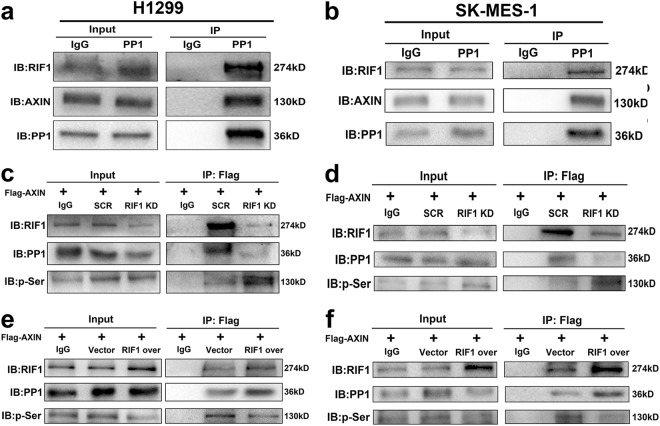 RIF1 promotes PP1 to dephosphorylate AXIN. a , b Immunoprecipitation was performed with PP1 antibody and the precipitated protein complexes were analyzed by western blots with antibodies to RIF1 and AXIN in H1299 ( a ) and SK-MES-1 ( b ) cells. c , d RIF1-silenced H1299 ( c ) and SK-MES-1 ( d ) cells and the scrambled control cells were transfected with Flag-tagged AXIN plasmid. Immunoprecipitation was done with anti-FLAG <t>M2</t> magnetic beads and the precipitated complexes, which were pull down by Flag-tagged AXIN were subjected to western blot with antibodies to RIF1, PP1 and p-Ser. e, f H1299 ( e ) and SK-MES-1 ( f ) cells were co-transfected Flag-tagged AXIN plasmid with control vector or RIF1 overexpression plasmid. Immunoprecipitation was performed with anti-FLAG M2 magnetic beads and the precipitated complexes were analyzed by western blots with antibodies to RIF1, PP1 and p-Ser (mouse IgG conjugated with magnetic beads being the negative control)