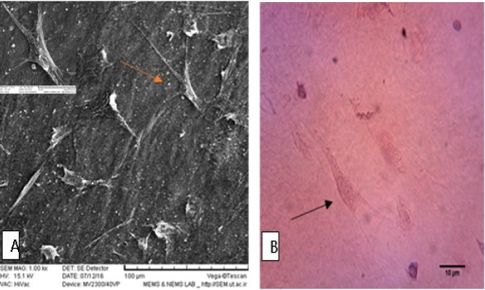BM-MSCs cultured on decellularized AM. A: scanning electron microscopy micrograph; B: hematoxylin and eosin staining, Arrows show BM-MSCs-seeded on AM scaffold