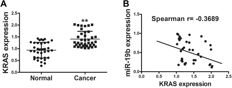 The expression of KRAS was inversely correlated with miR-19b expression in human clinical specimens. A, The expression of KRAS in adjacent normal tissues and human cancer specimens was determined by qRT-PCR analysis, and fold changes were obtained from the ratio of KRAS and GAPDH levels. B, Spearman analysis was conducted between expression of miR-19b and KRAS. Data represent mean (SD) of 3 replicates. **Significant difference at P