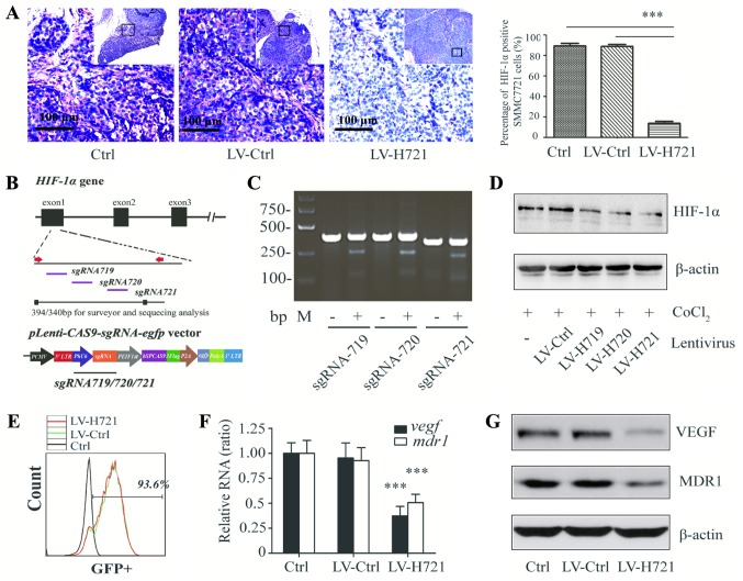 Generation of the CRISPR/Cas9-based lentivirus and HIF-1 α knockout in SMMC-7721 cells and in the SMMC-7721-induced tumor tissues of mice. (A) Immunohistochemical analysis for the detection of HIF-1α expression in hepatocellular carcinoma tissues following infection with LV-Ctrl or LV-H721 in the subcutaneous animal model (bars, 100 µm). (B) Diagram illustration of the lentiviral vector ( Lenti-CAS9-sgRNA-egfp ). Three sgRNAs (sgRNA719, sgRNA720 and sgRNA721) targeting HIF-1α were designed, and Lenti-CAS9-sgRNA719 / 720 /721 plasmids were constructed. (C) Gel electrophoresis and DNA analysis of the HIF-1α genomic frame shift mutation conducted after the T7E1 endonuclease assay in SMMC-7721 cells infected with LV-Ctrl or LV-H719/720/721. (D) Western blot analysis of HIF-1α expression in the different lentivirus-infected SMMC-7721 cells with CoCl 2 -simulated hypoxia. (E) GFP-positive cells analyzed by flow cytometry following infection with LV-Ctrl and LV-H721. (F) Relative mRNA and (G) protein expression levels of VEGF and MDR1 in different cell groups were examined by reverse transcription-quantitative polymerase chain reaction and western blot analysis. β-actin served as an internal control. Data are a representation of four repeated experiments, and histograms represent the mean ± standard deviation. ***P