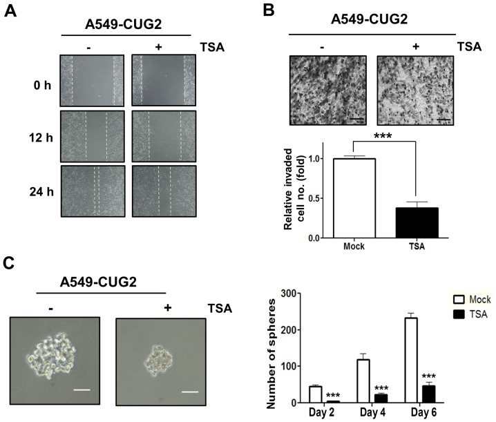 Treatment with TSA inhibits CUG2-induced cell migration, invasion and sphere formation. (A) A549-CUG2 cells were treated with TSA (100 nM) or DMSO for 24 h, and the cell monolayer was scratched. Cell migration was measured by a wound healing assay. (B) An invasion assay was performed after treatment with TSA or DMSO using 48-well Boyden chambers coated with Matrigel. Scale bar indicates 100 µm (***P