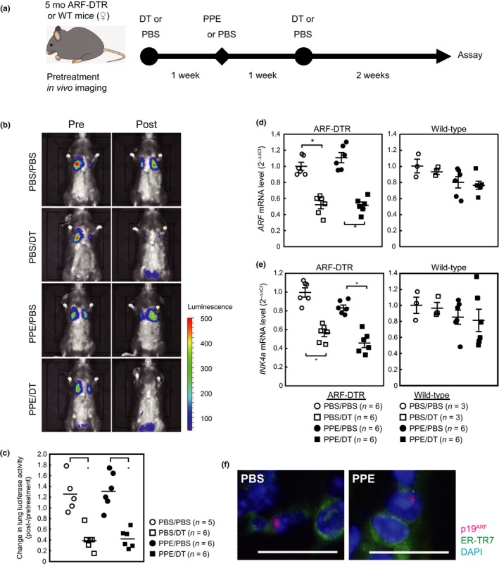 DT eliminated p19 ARF ‐expressing cells from the lung tissues of ARF‐DTR mice. (a) Experimental procedure. Five‐month‐old female ARF‐DTR or wild‐type mice pretreated with PBS or DT were administered porcine pancreatic elastase (100 U/kg). DT and PPE were administered intraperitoneally and intranasally, respectively. (b) Representative images of the in vivo imaging of ARF‐DTR mice. Images were taken before (pre) and after (post) the administration of DT and PPE, as shown in panel a. (c) Luciferase activity was measured using in vivo imaging analysis software. Changes in the luciferase activity before and after drug administration in each mouse were plotted. Bars indicate the average values of each group. (d,e) The total RNA extracted from lung tissue was analyzed by real‐time PCR for the expression of ARF (d) or INK4a (e). GAPDH mRNA was used as an internal standard in each sample, and the ∆∆ C t method was used to determine the relative expression level. Bars represent the mean ± SEM . Data were analyzed by a one‐way ANOVA and Steel–Dwass post hoc analysis. * p