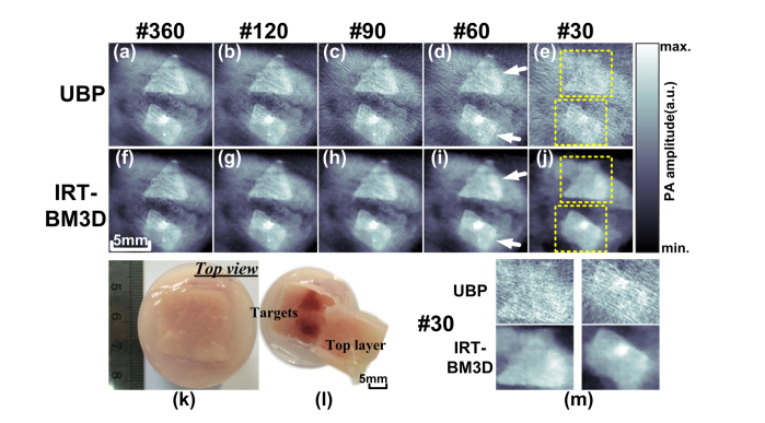 Reconstructed images of the tumor-mimicking tissue sample: (a)-(e) UBP results of #360-, #120-, #90- #60- and #30-view cases; (f)-(j) IRT-BM3D results of #360-, #120-, #90-, #60- and #30-view cases; (k)-(l) Photographs of the biological tissue sample; (m) Reconstructed details in yellow dotted boxes in (e) and (j).