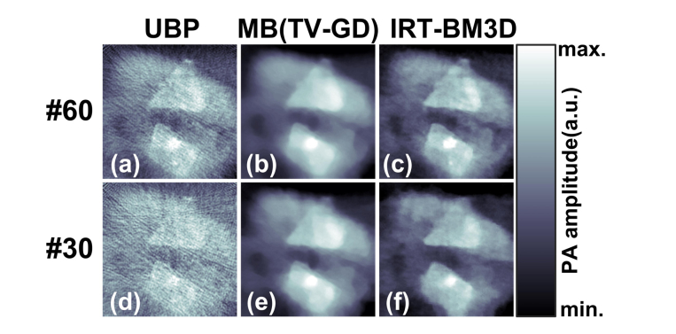 Reconstructed results of the tumor-mimicking tissue sample: (a)-(c) UBP, TV-GD and IRT-BM3D results for #60-view case; (d)-(f) UBP, TV-GD and IRT-BM3D results for #30-view case.