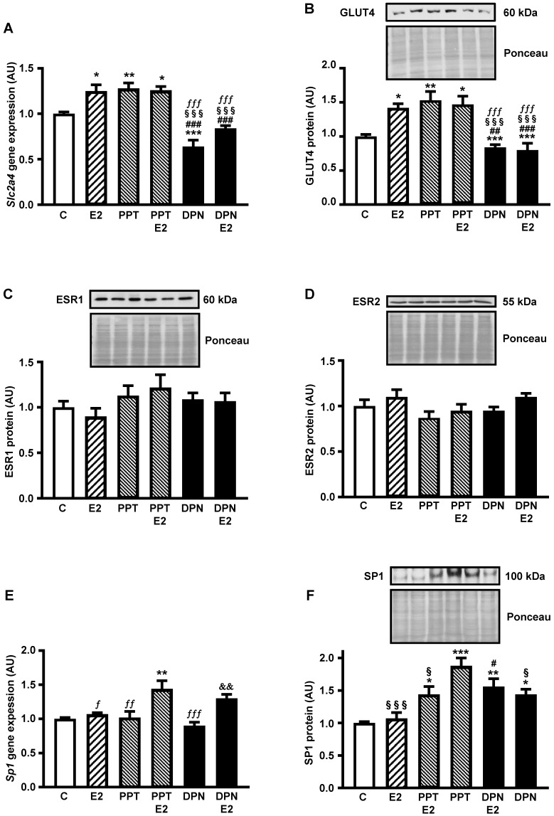 ESR1 activity increases Slc2a4/GLUT4 expression and nuclear content of SP1 in adipocytes Adipocytes (3T3-L1) were treated (24 hours) with no stimulus (C), with estradiol (E2), ESR1 agonist alone (PPT) or with E2 (PPT+E2), and ESR2 agonist alone (DPN) or with E2 (DPN+E2). Slc2a4 mRNA (A), total cellular GLUT4 protein (B), nuclear ESR1 (C), nuclear ESR2 (D), Sp1 mRNA (E) and nuclear SP1 (F) contents were measured. For each protein analyzed, a representative immunoblot and respective Ponceau stained membrane are shown; lanes are in the same sequence of the graph bars. Data are means ± SEM of 5 different samples, compared by one-way-ANOVA, followed by Tukey's post-test, after to confirm the normality of the data distribution by the Shapiro-Wilk test. *P