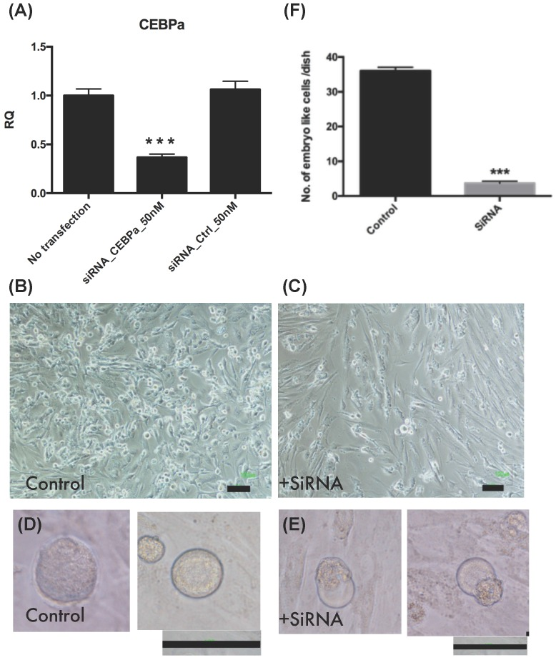 Embryo like cells decreased after CCAAT/enhancer binding protein-α (C/EBPα) was downregulation. (A) The C/EBPα downregulation in endometrial polyp stem cells after <t>siRNA</t> <t>transfection</t> (p