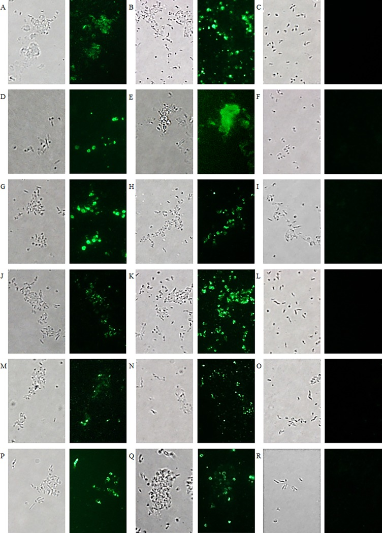 Visualisation of the binding of chimeric anti-MOMP antibodies in seed extract with Campylobacter isolates. (A, B, C, J, K, L) C . jejuni strain KC40, (D, E, F, M, N, O) C . jejuni strain Cam12/0156 and (G, H, I, P, Q, R) C . coli strain K43/5. Binding with the different Campylobacter isolates is shown with seed extract containing (A, D, G) Nb5-IgA, (B, E, H) Nb23-IgA, (C, F, I) V1-IgA, (J, M, P) Nb5-IgY, (K, N, Q) Nb23-IgY and (L, O, R) V1-IgY. As a negative control, the nanobody V1 against F4-fimbriated E . coli was used. Bright field microscopy was used for the visualisation of the corresponding bacterial cells.