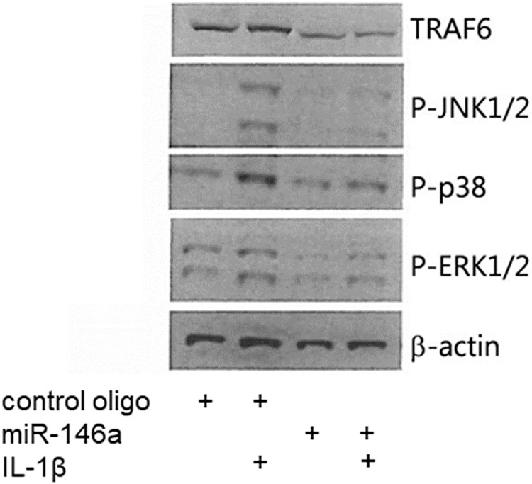 miR-146a-5p inhibits IL-1β-induced phosphorylation of JNK, p38 and ERK MAPK. Representative Western blot of TRAF6, p-JNK1/2, p-p38, p-ERK1/2, and β-actin (n = 4). INS1 cells were transiently transfected with a negative control oligo or a synthetic miR-146a-5p oligo for 48 h, and exposed to media with or without IL-1β (160 pg/ml) for 30 min.