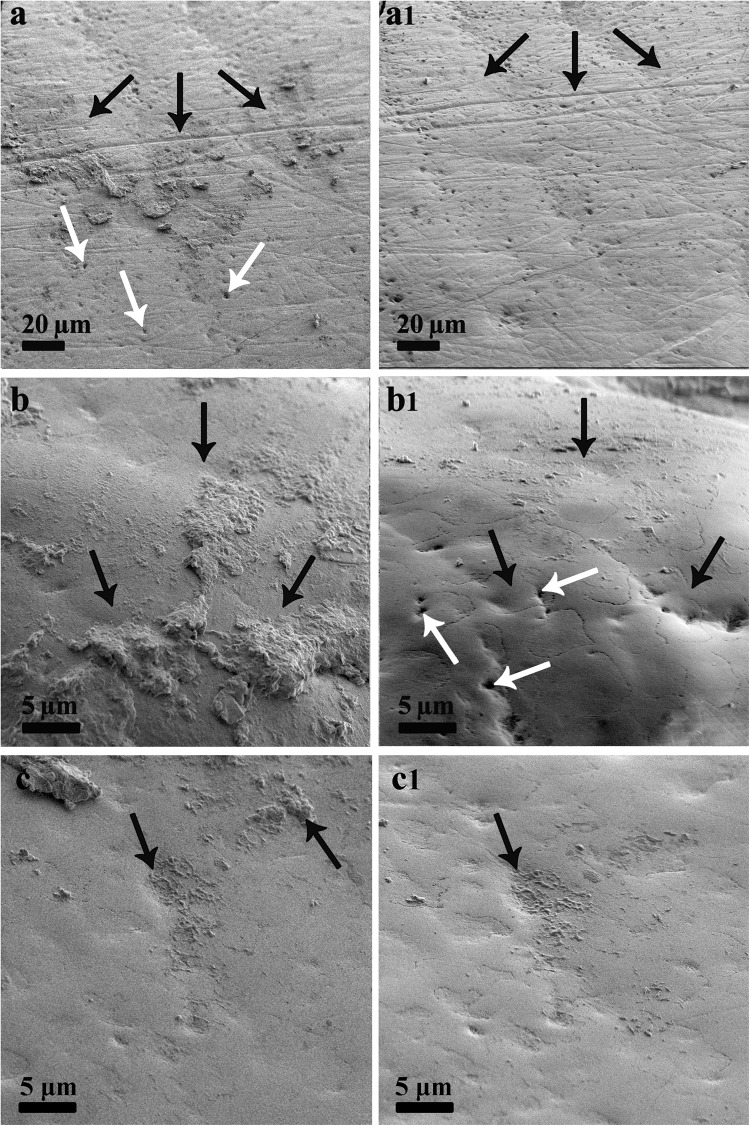 Representative SEM images of enamel surfaces. a – c After biofilm formation, before foam or saline rinsing; a1, b1—after foam rinsing, c1—after saline rinsing. Black arrows indicate biofilm location site. White arrows indicate erosive pits