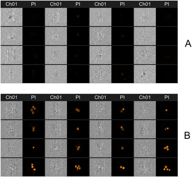 The example of fluorescence photographs of propidium iodide negative ( A ) and propidium iodide positive ( B ) cells. For better perception and indication of permeabilization multiple cells are shown, however for quantitative analysis of cell permeabilization only single cells were used. Due to electroporation ( B ) the propidium iodide can successfully enter the cells, which is not the case in the untreated control ( A ). Ch01 – brightfield image; PI – fluorescence image (488 nm), taken using bandpass filter of 610–630 nm.