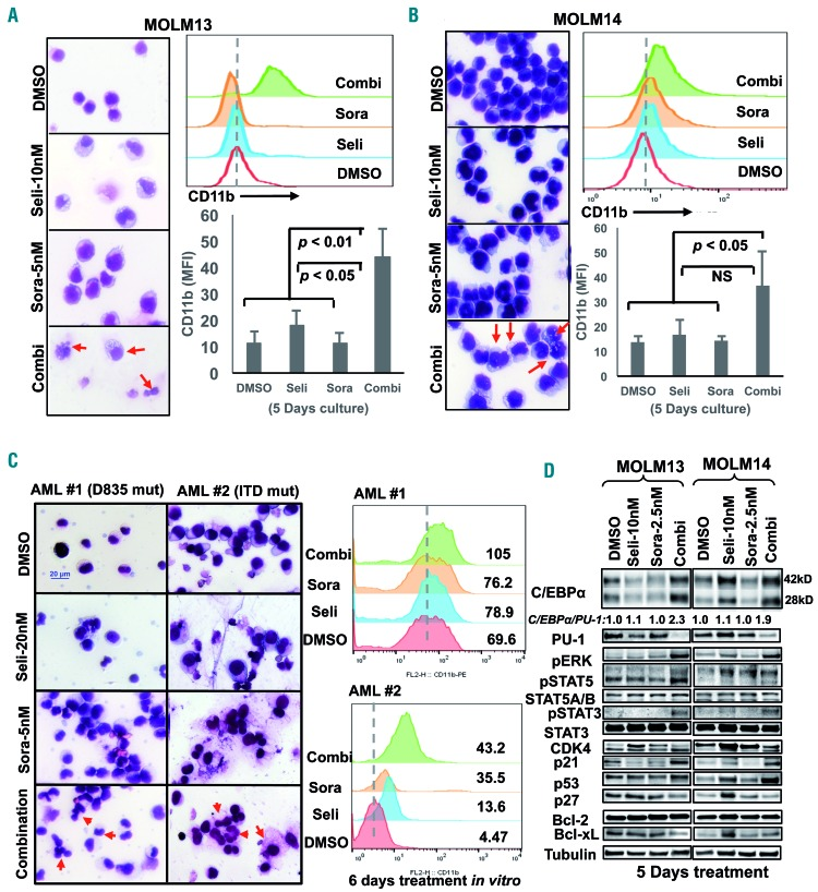 Combination treatment triggers myeloid differentiation of leukemic cells. FLT3-ITD mutated cell lines MOLM13 (A), MOLM14 (B) and primary AML patients' samples (C) were treated with the indicated concentrations of selinexor and/or sorafenib for 5 or 6 days in vitro ; morphological changes of the cells were checked with Giemsa staining. Expression of the myeloid differentiation marker CD11b was determined using flow cytometry. The histograms present individual assays which measured fluorescent intensity of CD11b. Each column was generated from four individual assays. (D) Differentiation-related proteins were evaluated using immunoblotting. The expression levels and ratios of <t>C/EBPα/PU-1</t> were measured (first lane which was defined as 1). Dimethylsulfoxide (DMSO) was used as a control. Seli: selinexor; Sora: sorafenib; Combi: combination.