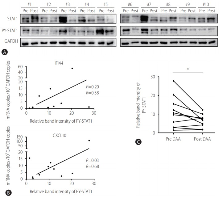 STAT1 phosphorylation decreased in the peripheral blood mononuclear cells (PBMCs) of HCV-infected patients after direct-acting antiviral (DAA) treatment. (A, C) PBMCs from HCV-infected patients were isolated before DAA (pre DAA) and at the end of DAA (post DAA) treatment. Immunoblotting was performed to detect the protein levels of STAT1, PY-STAT1, and GAPDH. (B) PBMCs from HCV-infected patients were isolated before DAA treatment. TaqMan real-time quantitative polymerase chain reaction was performed to detect mRNA levels of IFI44, CXCL10, and GAPDH. Pearson's correlation analysis was performed to identify the associations between expression levels of IFI44/CXCL10 and relative band intensity of PY-STAT1. STAT1, signal transducer and activator of transcription 1; HCV, hepatitis C virus; PY-STAT1, tyrosine-phosphorylated STAT1; GAPDH, glyceraldehyde 3-phosphate dehydrogenase; IFI44, interferon-induced protein 44; CXCL10, C-X-C motif chemokine ligand 10. * P