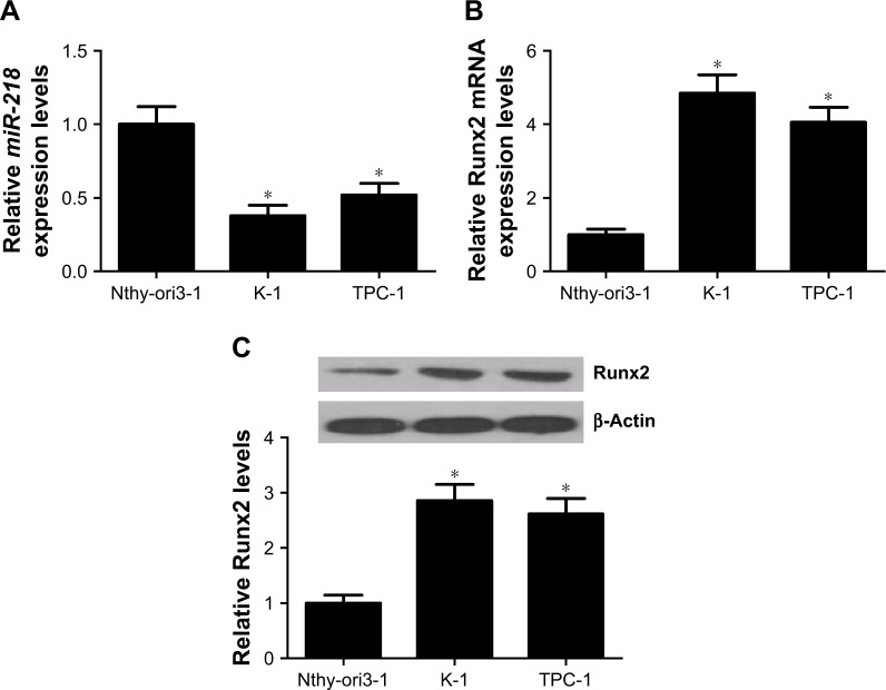 Expressions of miR-218 and Runx2 in PTC cells. Notes: ( A ) The expressions of miR-218 in PTC cell lines (TPC-1 and K-1) and human thyroid epithelial cell line Nthy-ori3-1 were evaluated by qRT-PCR. The expression levels of Runx2 at ( B ) mRNA and ( C ) protein levels in TPC-1, K-1, and Nthy-ori3-1 cells were assessed by qRT-PCR and Western blot. * P