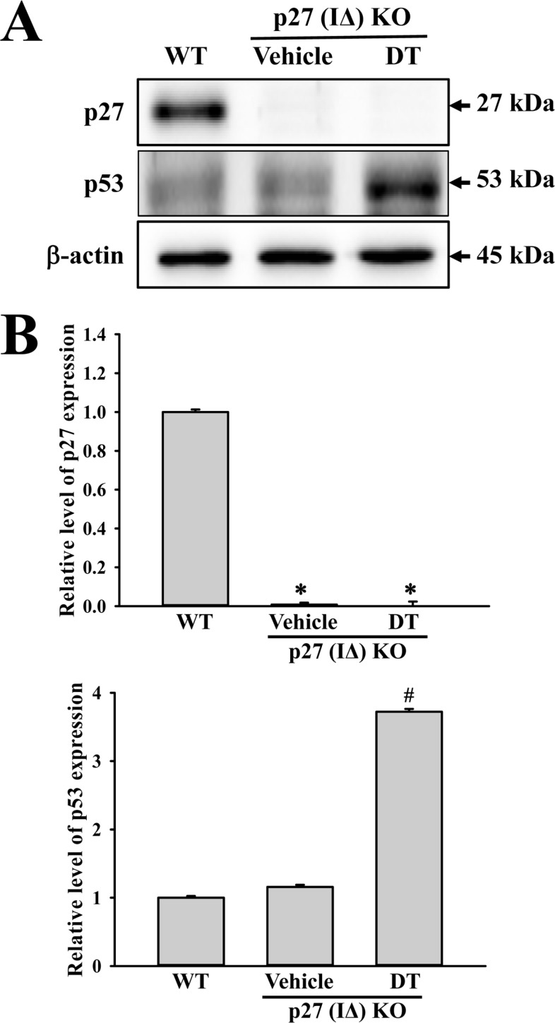 Expression analysis of tumor suppressor protein. An alteration in the expressions of p53 and p27 proteins were determined in DT-treated p27 (IΔ) KO mice by Western blot assays using HRP-labeled anti-rabbit IgG antibody. Band intensities were determined using an imaging densitometer, and the expression level of 6 proteins were evaluated relative to the intensity of actin bands. The data represents the means±SD (n=8). *, indicates P