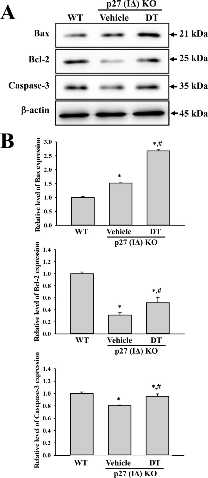 Expression analysis of apoptotic proteins. Alterations in the expressions of Bax, Bcl-2 and Caspase-3 proteins were determined in DT-treated p27 (IΔ) KO mice by Western blot assays using HRP-labeled anti-rabbit IgG antibody. Band intensities were determined using an imaging densitometer, and the expression level of 6 proteins were evaluated relative to the intensity of actin bands. The data represents the means±SD (n=8). *, indicates P