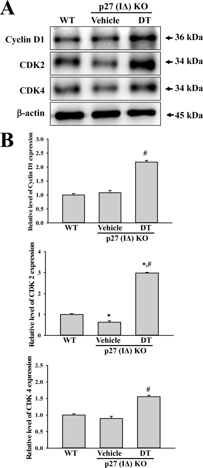 Expression analysis of cell-cycle regulator proteins. An alteration in the expressions of Cyclin D1, CDK2 and CDK4 proteins were determined in DT-treated p27 (IΔ) KO mice by Western blot assays using HRP-labeled anti-rabbit IgG antibody. Band intensities were determined using an imaging densitometer, and the expression level of 6 proteins were evaluated relative to the intensity of actin bands. The data represents the means±SD (n=8). *, indicates P