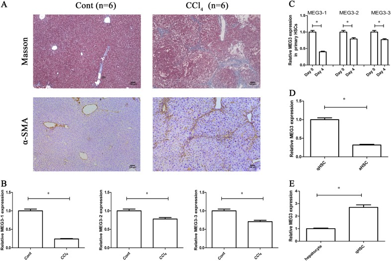 Downregulation of MEG3 in liver fibrosis. a Collagen and α-SMA were analyzed in CCl 4 mice by Masson staining and immunohistochemistry, respectively. Scale bar, 100 μm. b MEG3-1, MEG3-2, and MEG3-3 expressions were detected by qRT-PCR in CCl 4 mice. c Expressions of MEG3-1, MEG3-2, and MEG3-3 were analyzed in primary HSCs at Day 0 and Day 4. Primary HSCs were isolated from the livers of healthy mice. d MEG3 was analyzed in primary HSCs isolated from oil- or CCl 4 -treated mice. e MEG3 was analyzed in primary HSCs and primary hepatocytes from the livers of healthy mice. * P
