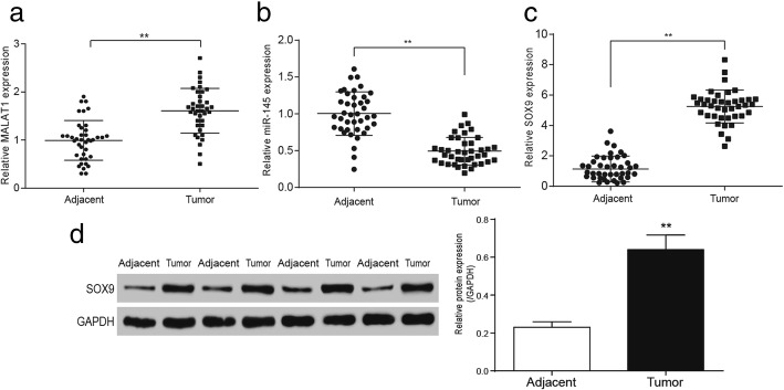 MALAT1 and SOX9 were highly expressed in colorectal cancer tissues while miR-145 was low expressed a The relative MALAT1 expression in colorectal cancer tissues and adjacent tissues. b the expression of miR-145 in colorectal cancer tissues and adjacent tissues. c qRT-PCR detected the expression of SOX9 in colorectal cancer tissues and adjacent tissues. d western blot detected the expression of SOX9 in colorectal cancer tissues and adjacent tissues. ** P