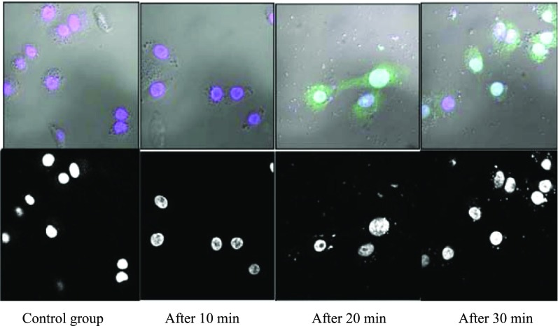 Confocal microscopic images of <t>A549</t> cells treated with the lipolex formed from formulation 5d(chol) : first column shows the control group (cells without any lipoplex treatment), second column after 10 min, third column after 20 min, and fourth column after 30 min of lipoplex treatment of the cells. The bottom row images represent phase contrast images of the cells, whereas the upper ones are merged images showing blue-stained nucleus and the green dots surrounding the cytoplasm and entering the nucleus, at different time intervals.
