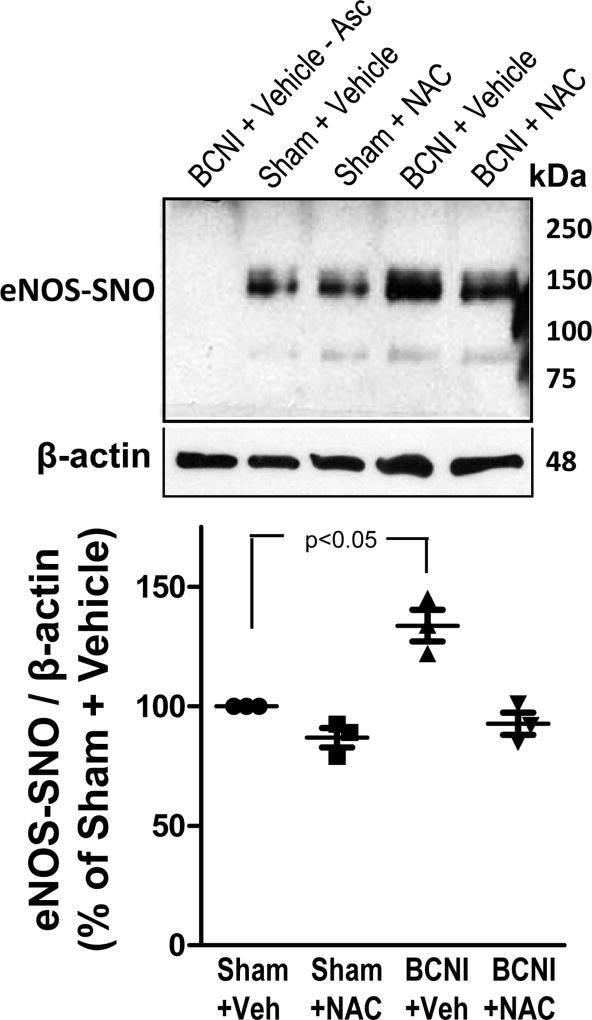 S-nitrosylation of eNOS is increased in the penis after cavernous nerve injury, and is decreased by treatment with a <t>denitrosylating</t> agent NAC. eNOS S-nitrosylation was measured by TMT-switch assay consisting of immunoprecipitation of TMT-tagged proteins with anti-eNOS antibody, followed by Western blot against TMT. Upper panels are representative Western immunoblots of eNOS-SNO and β-actin in penes of Sham+Vehicle, Sham+NAC, BCNI+Vehicle, and BCNI+NAC rats (lanes 2–5). Lower panel represents quantitative analysis of eNOS-SNO/β-actin in the same treatment groups. No S-nitrosylation of eNOS could be detected in penile tissue of BCNI+Vehicle rats in the absence of ascorbate (lane 1). n=3