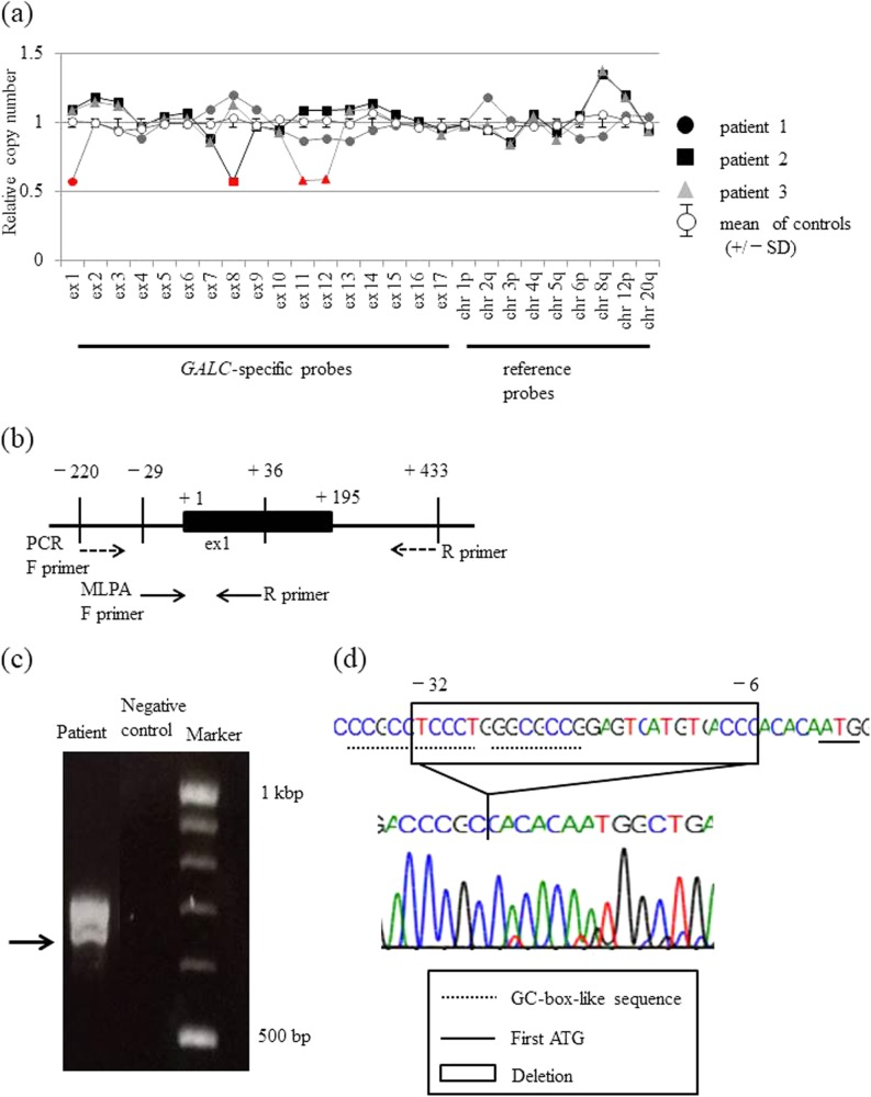 Detection of GALC <t>exon</t> 1–14 deletions/duplications by <t>MLPA</t> in GLD patients and a normal control, and a detailed analysis of the GALC gene deletion region in patient 1.