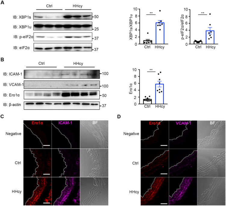 Hcy induces ER stress and inflammation and upregulates Ero1α in the thoracic aortas of HHcy mice. (A) The lysates of the thoracic aortas in normal (Ctrl) and HHcy mice were subjected to immunoblotting analysis for spliced <t>XBP1</t> (XBP1s), unspliced XBP1 (XBP1u), phosphorylated eIF2α (p-eIF2α), and eIF2α. Representative blots were shown. Statistical analysis for XBP1s/XBP1u and p-eIF2α/eIF2α was indicated. Data were presented as mean ± SEM from seven biological replicates, **p