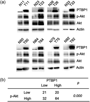 Increased expression levels of PTBP1 and p‐Akt were demonstrated in clinical tumor samples from breast cancer patients. (a) PTBP1, p‐Akt, and Akt expressions were analyzed in 137 breast cancer samples as determined by western blot. Actin was used as the control. (b) The relationship between PTBP1 and p‐Akt was significant. P