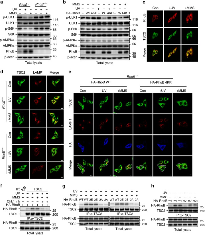 Phosphorylated and sumoylated RhoB recruits TSC2 to lysosomes to inhibit mTORC1 activity. a Knockout of RhoB prevents UV or MMS-induced downregulation of phosphorylated ULK1 and S6K. RhoB +/+ or RhoB − / − cells were subjected to immunoblotting assay 2 h after UV (80 Jm −2 ) or 4 h after MMS (0.5 mM). b Sumoylation of RhoB is required for UV or MMS-induced downregulation of phosphorylated ULK1 and S6K. RhoB − / − cells transduced with HA-tagged RhoB (WT or 4KR) were treated and subjected to immunoblotting assay as in panel a . c UV or MMS treatment induces colocalization of endogenous RhoB and TSC2. HeLa cells were treated as in panel a and subjected to immunofluorescence assay to examine the localization of endogenous RhoB and TSC2. Scale bar, 10 μm. d Knockout of RhoB attenuates translocation of TSC2 to lysosomes after UV or MMS treatment. RhoB +/+ or RhoB − / − cells were treated as in panel a and subjected to immunofluorescence to examine the colocalization of endogenous TSC2 and LAMP1. e Sumoylation of RhoB is critical for UV or MMS-induced lysosomal translocation of TSC2. RhoB − / − cells transduced with HA-tagged WT or 4KR RhoB were treated as in panel a and subjected to immunofluorescence assay. The dot lines outline cells with expression of RhoB WT or 4KR. Scale bar, 10 μm. f UV or MMS treatment enhances interaction between RhoB and endogenous TSC2. HeLa cells were treated as in panel a and subjected to anti-TSC2 immunoprecipitation followed by immunoblotting to detect associated RhoB. g Phosphorylation of RhoB is required for its interaction with TSC2 induced by UV or MMS treatment. HeLa cells transduced with HA-tagged RhoB (WT, 2E, or 2A) were treated, subjected to anti-TSC2 immunoprecipitation and immunoblotted as in panel g . h Sumoylation of RhoB is not responsible for its binding to TSC2. HeLa cells transduced with HA-tagged RhoB (WT or 4KR) were treated, subjected to anti-TSC2 immunoprecipitation and immunoblotted as in panel g