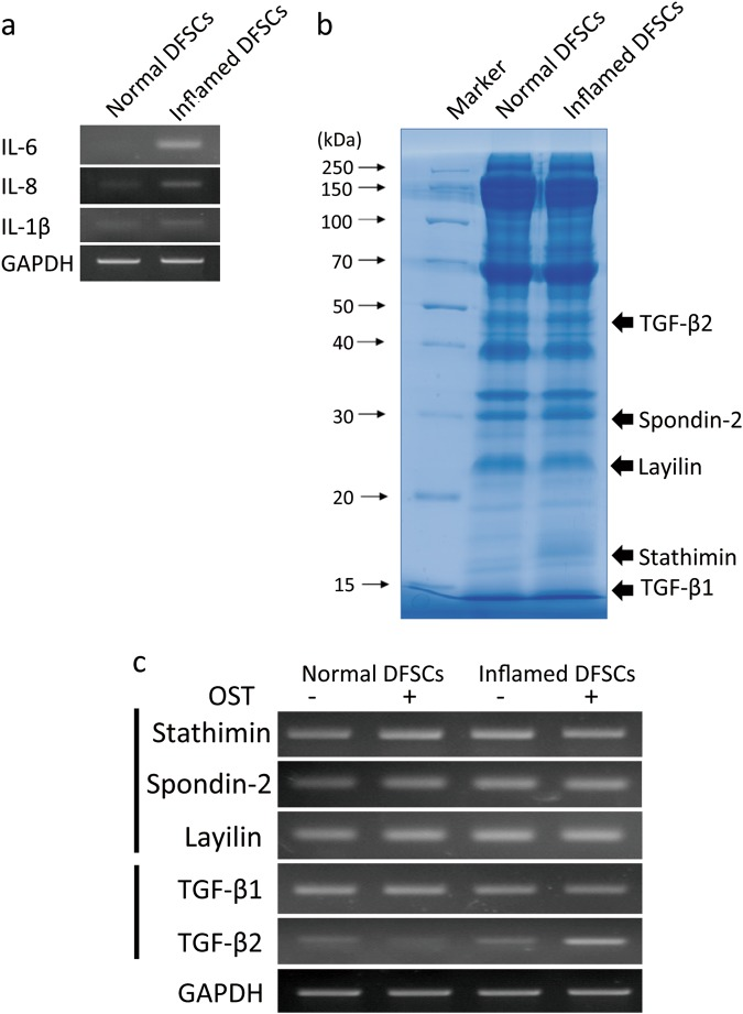 Gene profiling by RT-PCR. a The levels of the pro-inflammatory cytokines IL-6, IL-8 and IL-1β in DFSCs isolated from inflamed tissue were measured. b From the set of proteins with Mascot scores greater than 30 selected from LC-MS/MS analysis of normal and inflamed DFSCs, proteins related to osteogenic differentiation were selected. The level of expression of the genes encoding these proteins in normal and inflamed DFSCs during osteogenesis was determined by RT-PCR using specific primers. Differences in TGF-β2 gene expression in normal and inflamed DFSCs during osteogenesis were detected