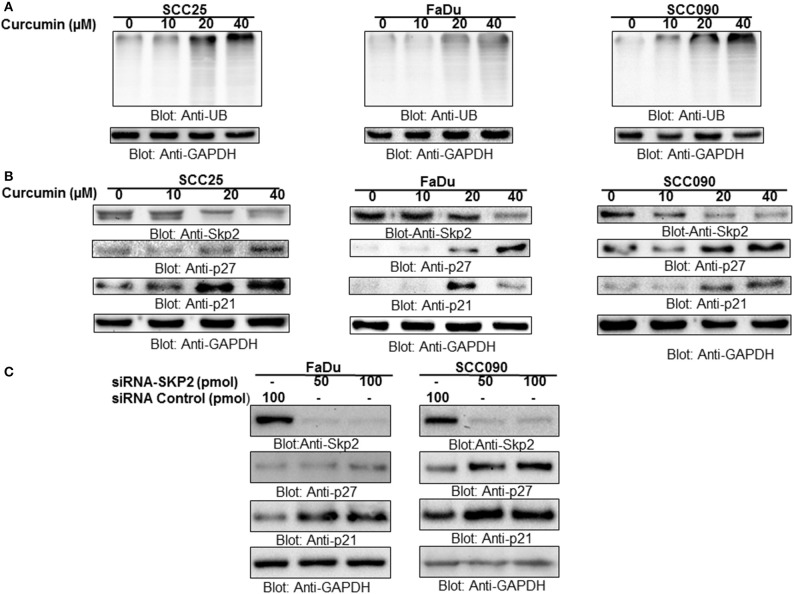 Curcumin mediated accumulation of ubiquitinated proteins via suppression of F-box protein Skp2 in HNSCC cell lines (A) Curcumin-mediated ubiquitination of various proteins. SCC25, FaDu, and SCC090 cells were treated with indicated doses of curcumin for 24 h. Equal amounts of protein lysates were separated by SDS-PAGE, transferred to PVDF membrane, and immunoblotted with antibodies of anti-ubiquitin and GAPDH as indicated (B) Curcumin treatment down-regulated the expression of Skp2 and enhanced the level of p27 and P21. SCC25, FaDu, and SCC090 cells were treated with various doses of curcumin for 24 h. After cell lysis, equal amounts of proteins were separated by SDS-PAGE, transferred to PVDF membrane, and immuno-blotted with antibodies against Skp2, p27, p21, and GAPDH as indicated (C) Skp2 siRNA transfection downregulates Skp2 and accumulated p27 and p21. FaDu and SCC090 cells were transfected with Scrambled siRNA (100 pmol) and Skp2 siRNA (50 and 100 pmol) using Lipofectamine 2000 as described in Materials and Methods. After 48 h of transfection, cells were lysed and equal amounts of proteins were separated by SDS-PAGE, transferred to PVDF membrane, and immunoblotted with antibodies against Skp2, p27, p21, and GAPDH as indicated.