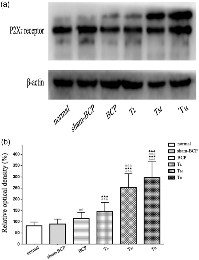 Alterations of P2X 7 receptor protein level in the vlPAG induced by cancer cell inoculation or tramadol injections. (a) By using Western blot analysis, we detected a protein band of ≈68 kDa, coinciding with the known molecular weight of the P2X 7 receptor. (b) β-actin was used as loading control. The P2X 7 receptor protein levels in different groups were expressed as ROD. No distinct change in P2X 7 receptor protein level was observed in vlPAG between normal and sham-BCP groups. The P2X 7 receptor protein level in vlPAG in BCP group was increased compared with normal and sham-BCP groups. Intraperitoneal tramadol injection at doses of 10, 20, and 40 mg/kg showed significantly and dose dependently upregulated the P2X 7 receptor protein level in vlPAG. n = 6; ⋆⋆ p