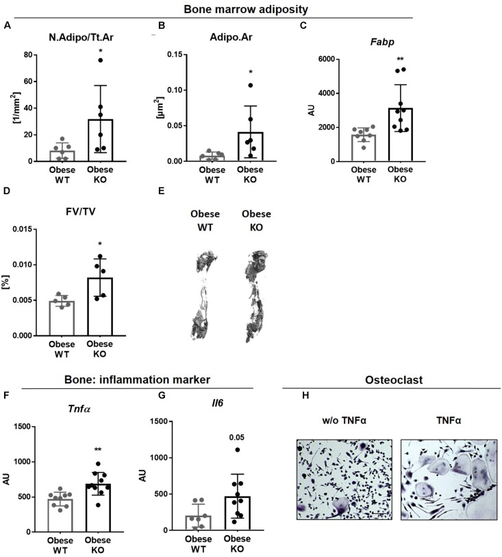 Lack of Thy-1 promotes obesity mediated inflammation. Wildtype (WT) and Thy-1 −/− (KO) mice were fed with a high fat diet for 18 weeks (HFD). (A) Number of adipocytes per total area (N.Adipo/Tt.Ar) and (B) adipocyte area (Adipo.Ar) of adipocytes were analyzed by histology technique. (C) Gene expression of the fat marker fatty-acid-binding protein ( Fabp ) in bone was assessed by RT-PCR. (D) Fat volume (FV/TV) in the femoral medullary cavity was analyzed by osmium tetroxide staining. (E) Representative 3D-images of the fat volume of whole femur. (F,G) Gene expression of the pro-inflammatory markers tumor necrosis factor α ( Tnfα ) and interleukin 6 ( Il6 ). (H) Osteoclast precursor cells from WT mice were cultured ex vivo without (w/o) and with TNFα and osteoclastogenesis was detected via staining for tartrate resistant acid phosphatase (TRAP; giant, multinucleated, red cells = osteoclasts; indicated by arrows). Asterisks denote significance level of ∗ P