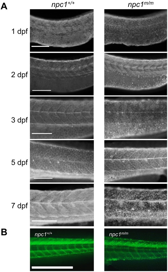 Unesterified cholesterol accumulation. (A) Control and mutant larvae were stained with filipin to visualize unesterified cholesterol. Filipin-positive puncta were initially observed in mutant larvae at 2 dpf in the area of the yolk sac extension and became more numerous with a wider distribution in older larvae. Scale bars: 200 µm. (B) Embryos were injected with TopFluor-cholesterol at the 1-cell stage and imaged at 7 dpf. Puncta of accumulated cholesterol were observed in the npc1 m/m larvae. Scale bar: 1 mm.