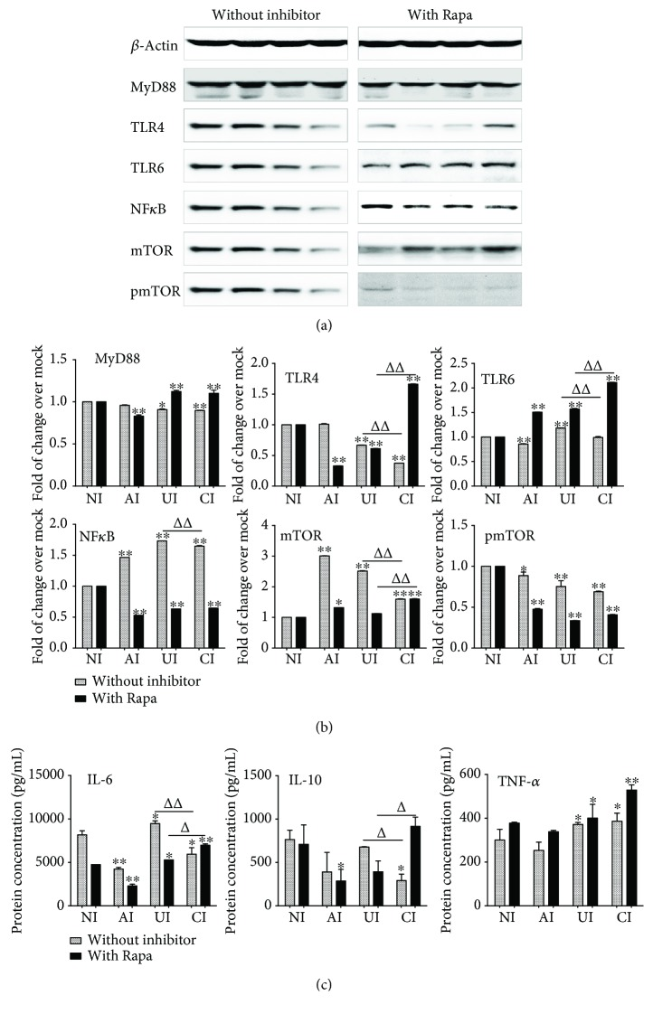 Impact of mTOR on the expression of TLR ligands and elements of the TLR signaling pathway in U937 cells to H37Rv infection in the A549 cell coculture model. In the presence or absence of mTOR inhibitor rapamycin, the coculture model of A549/U937 cells was infected with H37Rv mycobacteria from the upper chamber (A549 cells, AI), lower chamber (U937 cells, UI), or both chambers (A549 and U937 cells, CI) at a MOI of 3 for 18 h before the culture medium and U937 cells were harvested for analysis. (a) Representative blots of immunoblotting assay for indicated components of TLR signaling cascade showed an increased expression of TLRs and MyD88 but a reduced expression of NF- κ B in U937 cells of the coinfection model in the presence of rapamycin, in comparison with the absence of an inhibitor. (b) The fold of changes of proteins of interest in (a) semiquantitatively determined by densitometric assay using ImageJ software from three independent experiments. (c) Concentrations of TNF- α , IL-10, and IL-6 in culture media determined by ELISA. An increased TNF- α was observed in the presence of mTOR inhibitor rapamycin. The A549 cell-mediated reduction of cytokines in the Mtb H37Rv-infected U937 cells was reversed in the presence of mTOR inhibitor rapamycin. Error bars represent the standard deviation (SD) from three independent experiments. Compared to noninfection (NI) control, ∗ p