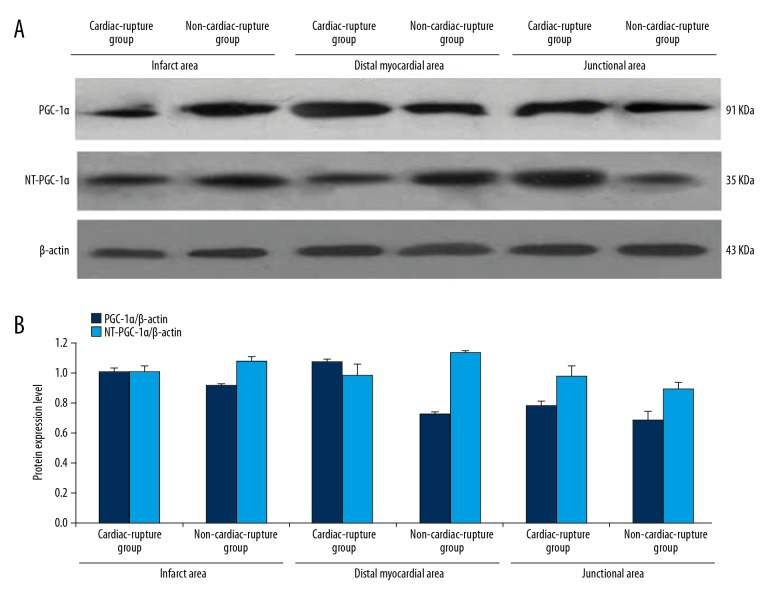 The relation between PGC-1α NT-PGC-1αexpression and the location of Myocardial area. ( A ) The protein expression level of PGC-1α in infarcted, junctional, and distant myocardial areas of the non-cardiac rupture and MI groups. ( B ) The quantity of protein expression level of PGC-1α in infarcted, junctional, and distant myocardial areas of non-cardiac rupture and MI groups, which was higher in the MI group than in the Non-MI group, and the difference among the levels in the junctional area was the most significant. The expression level of NT-PGC-1α in the junctional area of the MI group was higher than that in the Non-MI group, while it was lower than that in the infarcted and distant myocardial areas of Non-MI.