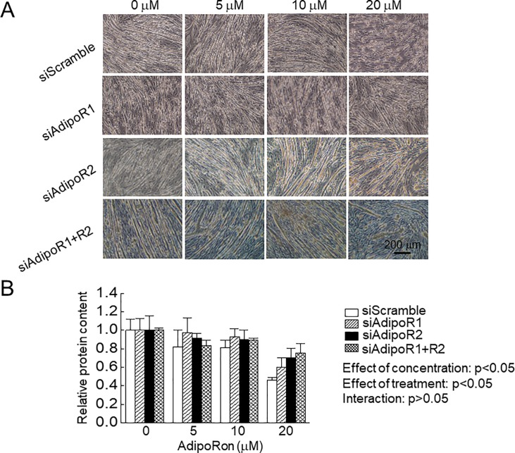 Effects of AdipoRon administration on C2C12 myotubes with or without knockdown of adiponectin receptor (AdipoR). Final concentration of AdipoRon was set at 0, 5, 10 and 20 μM in the differentiation medium. A: Effects of AdipoRon on C2C12 myotubes morphology with or without AdipoR knockdown. B: Effects of AdipoRon on protein content in C2C12 myotubes with or without AdipoR knockdown. siScramble: scrambled non-targeting control siRNA, siAdipoR1: siRNA for AdipoR1, siAdipoR: siRNA for AdipoR2, siAdipoR1+R2: siRNA for AdipoR1 and AdipoR2. n = 5 in each condition of each treated cells. Values are expressed means with SEM. *: p