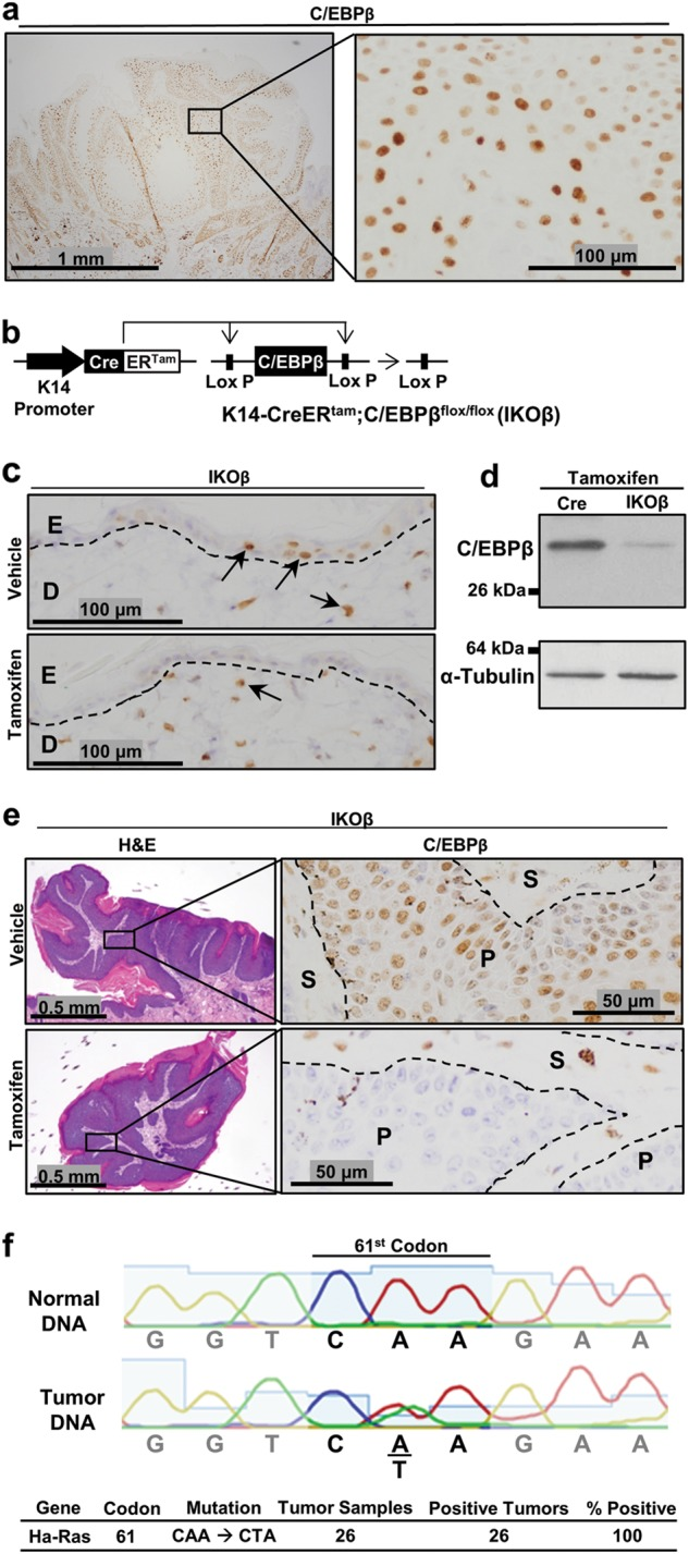 Spatial and temporal regulation of C/EBPβ in epidermis and in pre-existing oncogenic Ras skin tumors. a Immunohistochemical (IHC) staining for C/EBPβ in a DMBA/TPA-induced mouse squamous papilloma. b Schematic of the K14-CreER tam ;C/EBPβ flox/flox (IKOβ) transgenic mouse model system. c IHC staining for C/EBPβ in IKOβ mouse skin following vehicle or tamoxifen dosing. D dermis, E epidermis. d Western blot analysis for C/EBPβ in epidermal lysates from tamoxifen-treated Cre and IKOβ mice. e H E and C/EBPβ IHC staining in DMBA/TPA-induced mouse squamous papilloma following vehicle and tamoxifen dosing. f DNA sequence of the 61st codon of Ha-Ras in mouse tail and DMBA/TPA-induced squamous papillomas