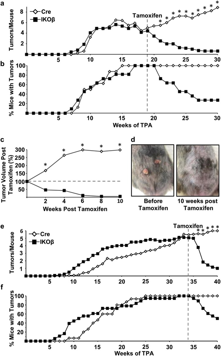 Oncogenic Ras skin tumors depend on C/EBPβ for survival. a Tumor multiplicity in Cre and IKOβ before and after mice were dosed with tamoxifen starting at 19 weeks, b tumor incidence, and c tumor volume remaining (Cre mice n = 10, IKOβ mice n = 11). d Representative photographs of skin tumors before and after tamoxifen on the same mouse. e Tumor multiplicity in Cre and IKOβ mice before and after mice were dosed with tamoxifen starting at 34 weeks, and f tumor incidence (Cre mice n = 15, IKOβ mice n = 18). Data are expressed as means. *indicates significantly different from IKOβ controls p