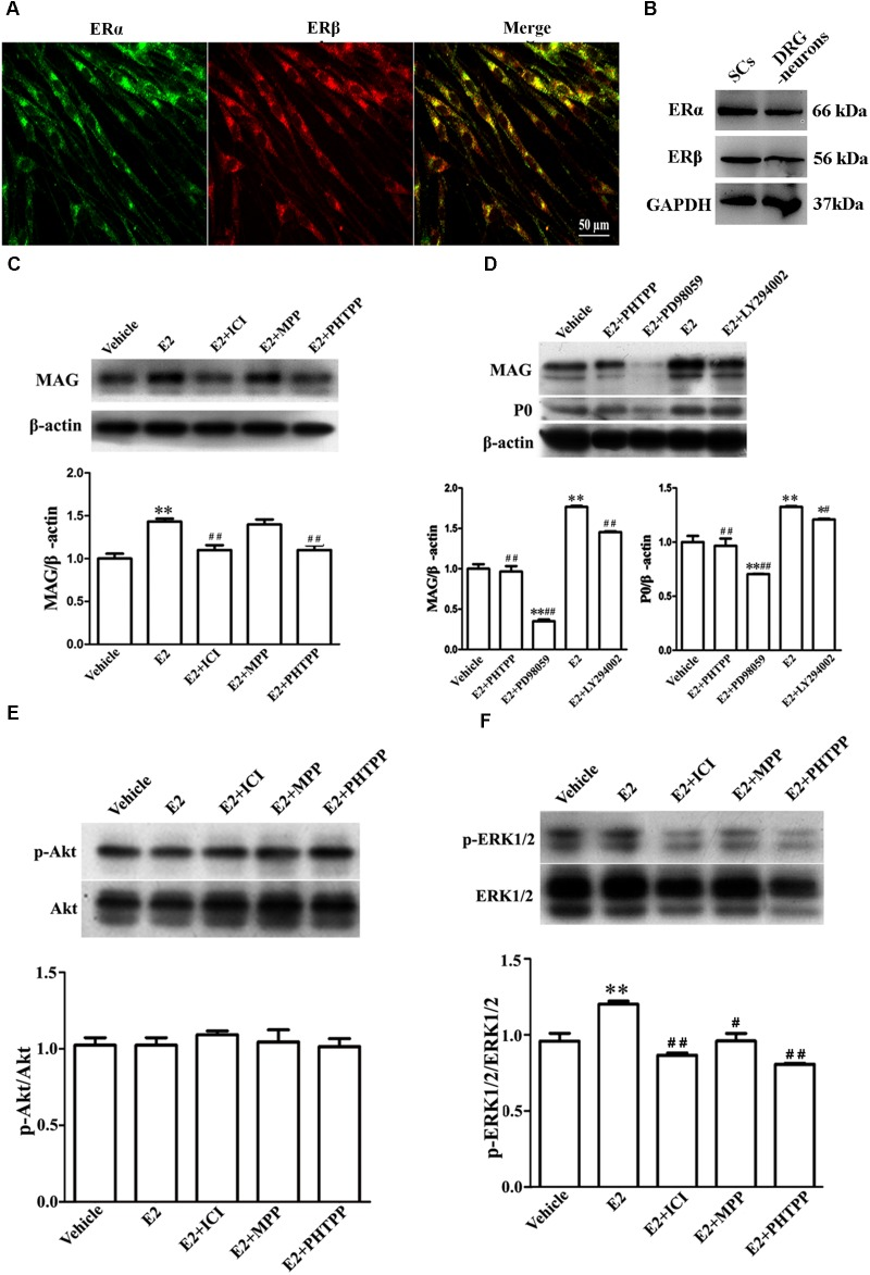 E2 enhances Schwann cell differentiation via ERβ-ERK1/2 signaling. (A) Immunohistochemistry with anti-ERα (green) and anti-ERβ (red) of Schwann cells. Scale bar, 50 μm. (B) ERα and ERβ expression in the cultured pure Schwann cells and DRG neurons s, as shown by western blotting. (C) Western blotting compared the MAG expression in differentiated SCs treated with E2 alone or with E2 plus ICI182780 or MPP (antagonist of ERα) or PHTPP (antagonist of ERβ) for 3 days. (D) Western blotting compared the MAG and P0 expression in differentiated SCs treated with E2 alone or with E2 plus PHTPP or PD98059 (antagonist of MEK1/2) or LY294002 (antagonist of PI3K) for 3 days, and vehicle as control, β-actin served as an internal standard. (E,F) Showed the phosphorylation of AKT (E) and ERK 1/2 (F) in differentiated SCs after treatments with E2 alone or with E2 plus ICI182780 or MPP or PHTPP for 3 days. ∗∗ p