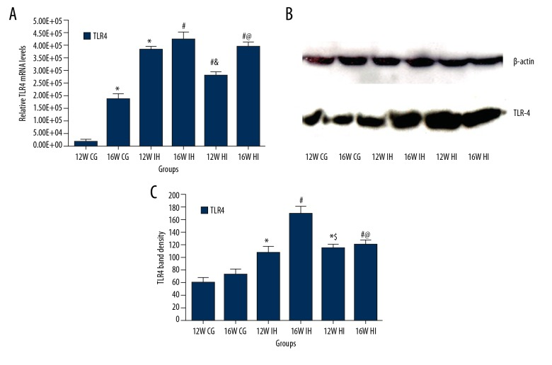 Real-time PCR results of mRNA levels of TLR-4 ( A ) and Western blotting results of expression of TLR-4 ( B ) tissues of rats in each group; TLR-4 band density ( C ). * P